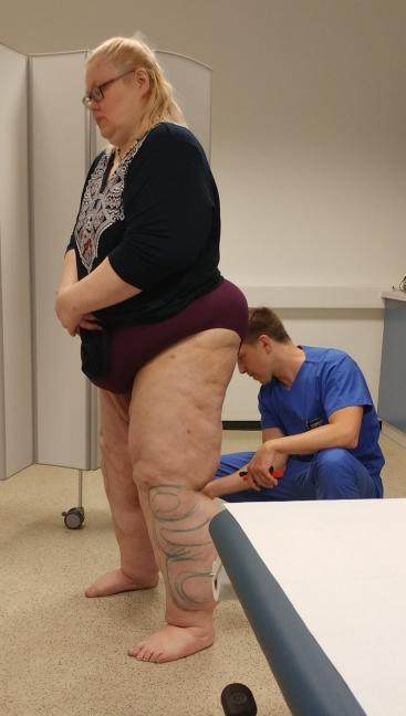 Dr.. Brandenstein bei der Arbeit. Seht ihr um wieviel besser schon meine Beine aussehen und durch die Gewichtsabnahme sieht man auch noch mehr <3