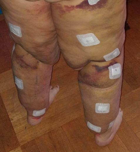 Eine Liposuktion ist schmerzhaft auch noch TAge und Wochen danach.